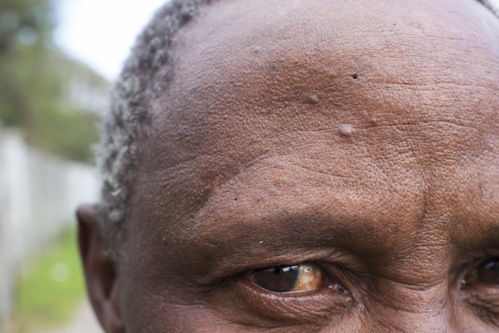 Vusumzi Mdoyogolo eye